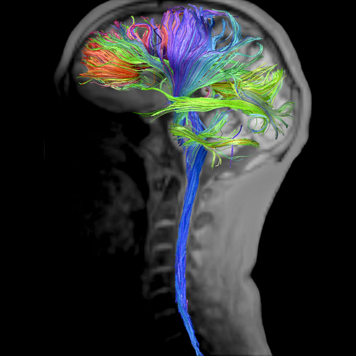 MRI scan of brain and nerves