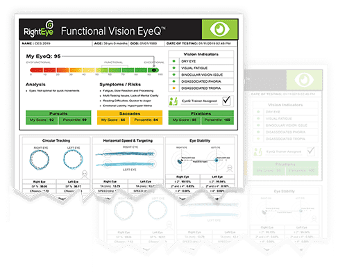Image of Right Eye's Functional Vision EyeQ report